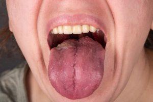 גידולי ראש צוואר- סרטן הלשון